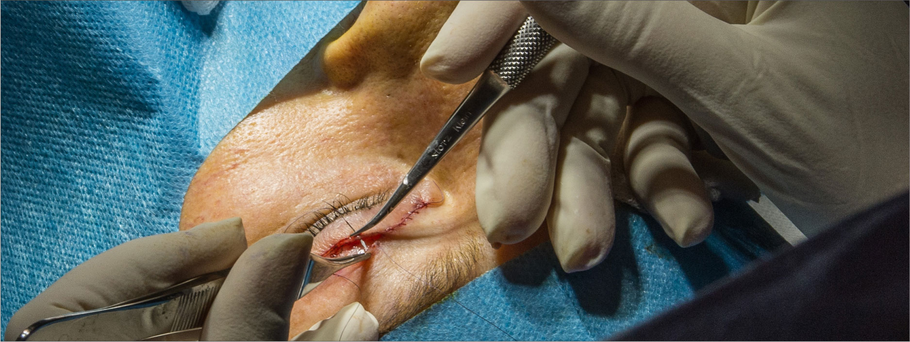 chirurgie-oculoplastica